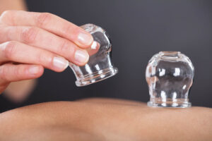 treatments cupping